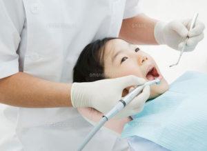 「思考(歯垢)」は自分で?「歯石」は歯医者で??